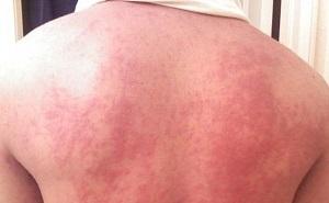 zika-virus-erupcoes-cutaneas